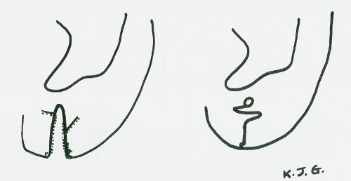 Rottura del lobo dell'orecchio o allungamento del buco dell'orecchino