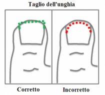L'unghia incarnita: quale trattamento?